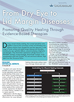 From Dry Eye to Lid Margin Diseases