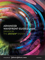 iDesign System - Advanced Wavefront-Guided Lasik